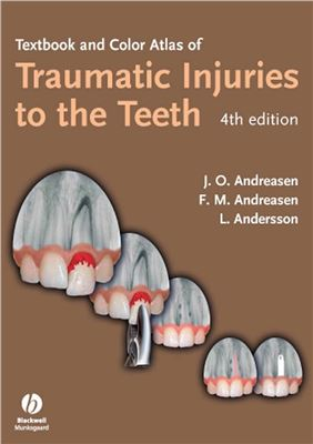 دانلود کتاب Textbook and Color Atlas of Traumatic Injuries to the Teeth